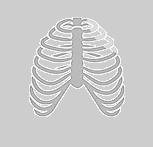 Cirugía torácica | Pectus