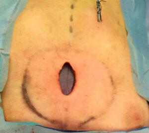 protesis-silicona-pectus-cirugia-toracica-galbis